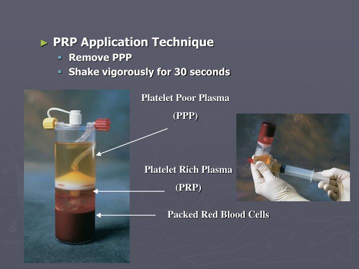 Platelet Poor Plasma