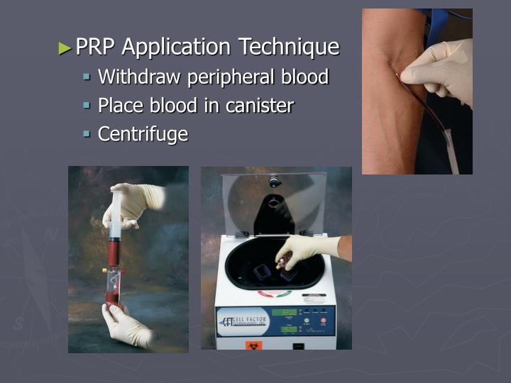 PRP Application Technique