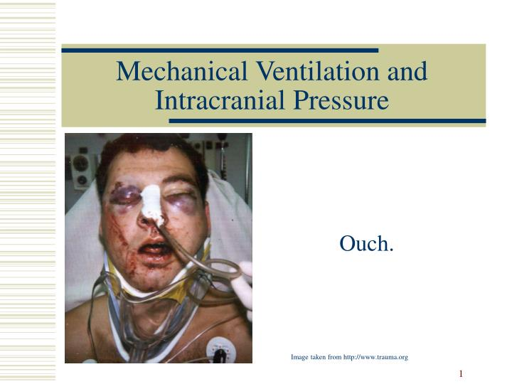 Mechanical ventilation and intracranial pressure l.jpg