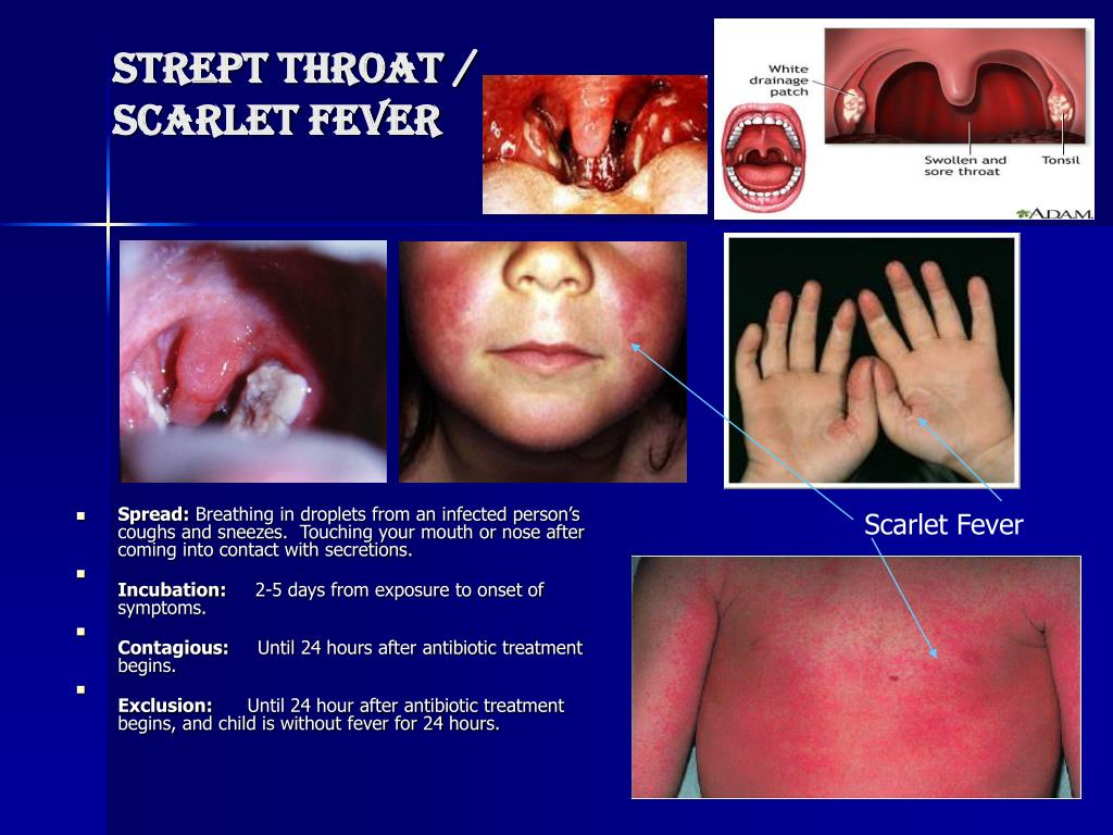 How To Treat Scarlet Fever Naturally
