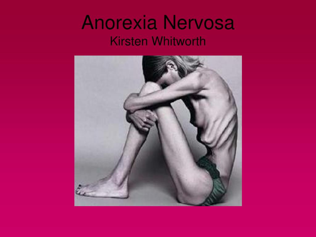 Anorexia Nervosa Pictures to Pin on Pinterest - PinsDaddy