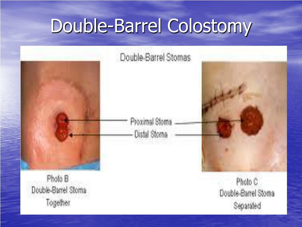 Double-Barrel Colostomy