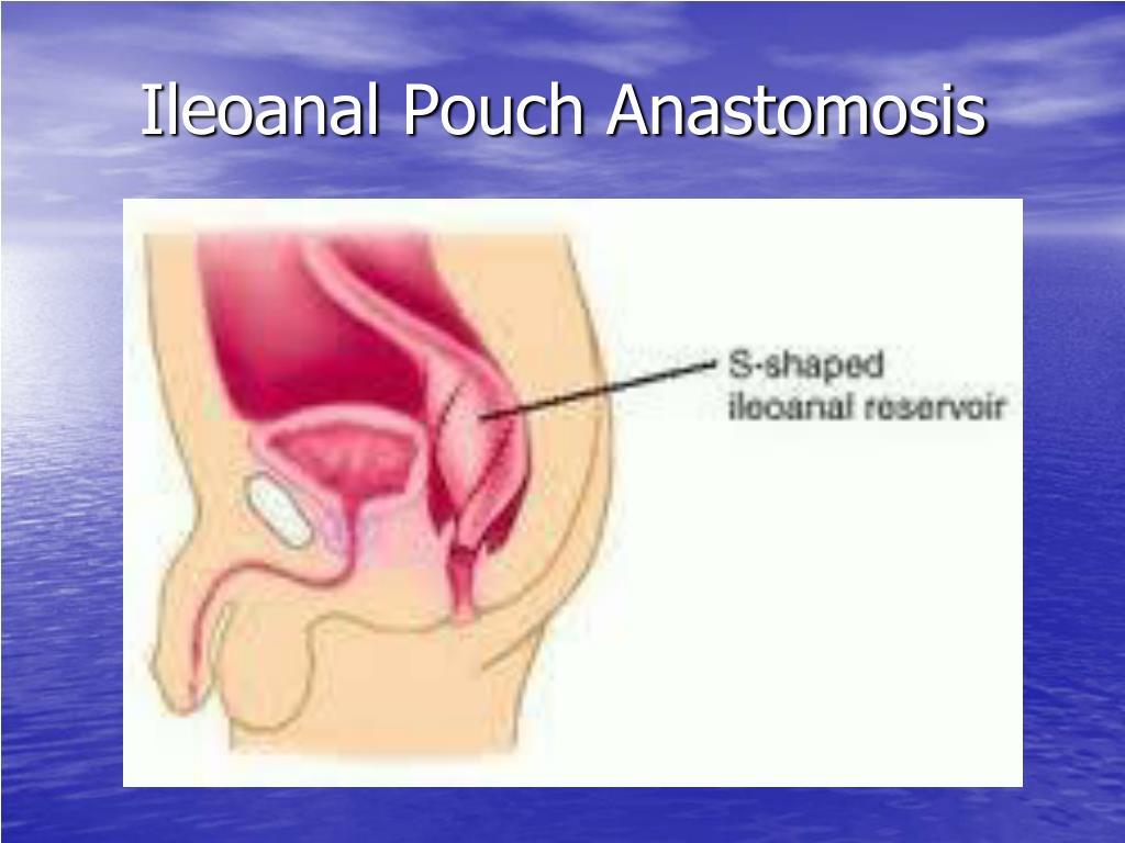Ileoanal Pouch Anastomosis