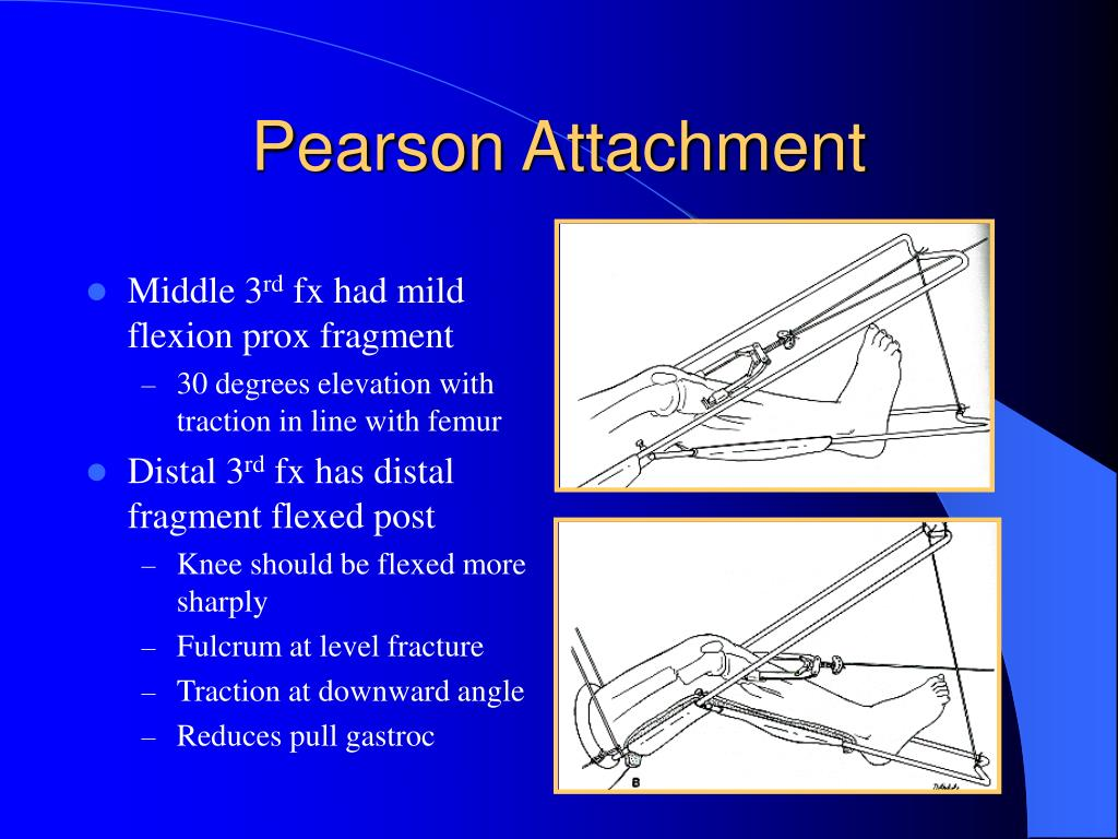 ppt orthopaedic traction powerpoint presentation id210938