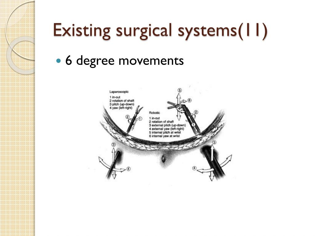 Existing surgical systems(11)