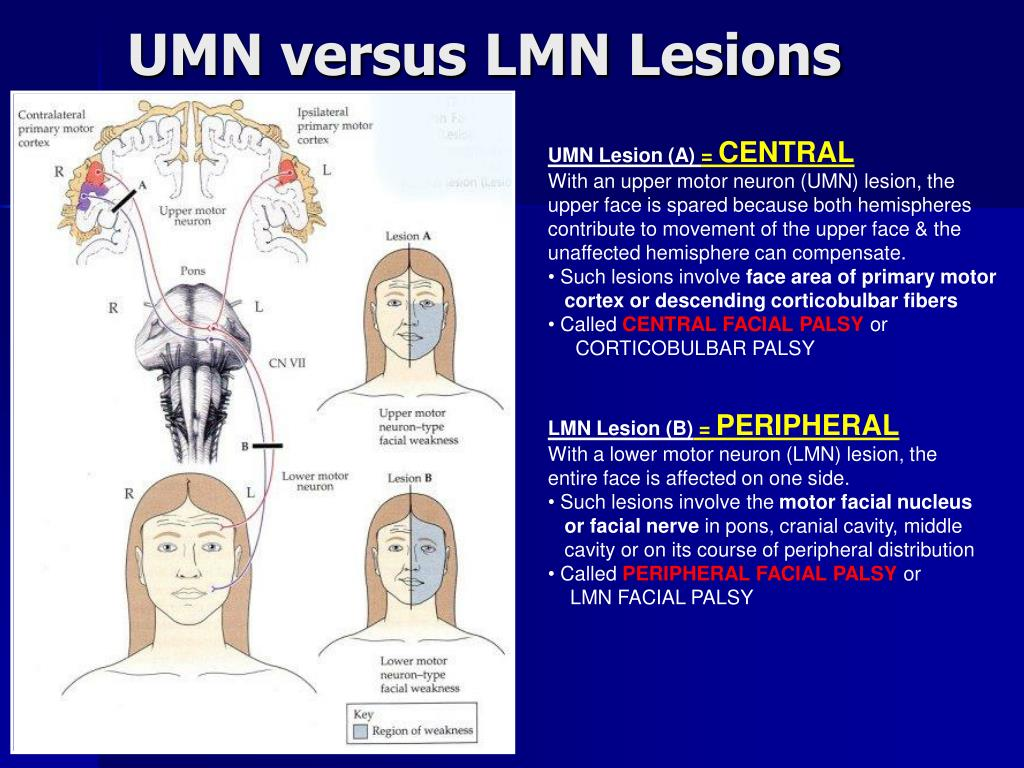 lesion of facial nerve Central