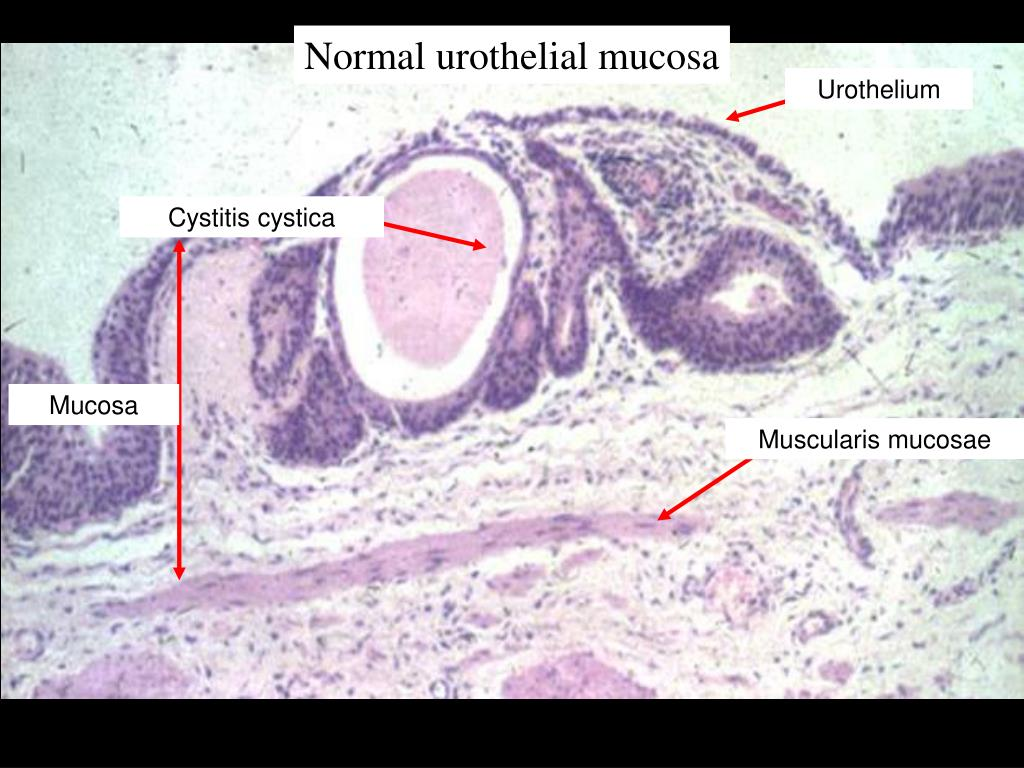 Normal urothelial mucosa