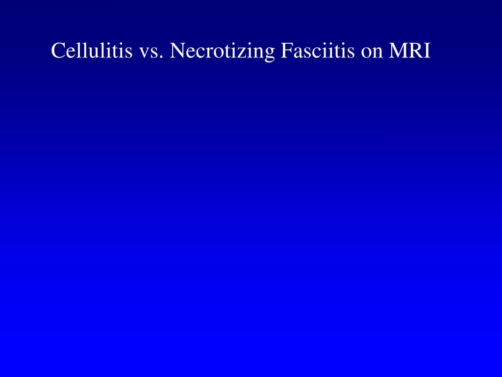 Cellulitis vs. Necrotizing Fasciitis on MRI