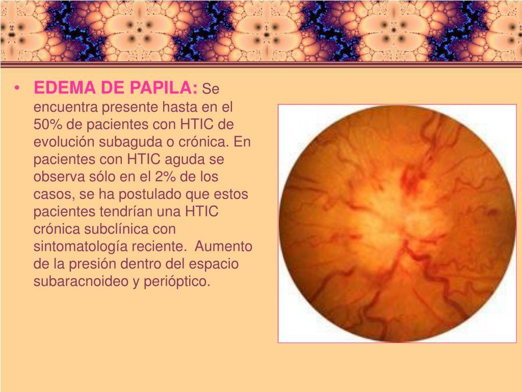 EDEMA DE PAPILA: