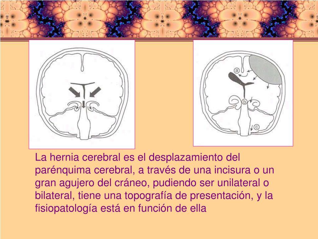 La hernia cerebral es el desplazamiento del parénquima cerebral, a través de una incisura o un gran agujero del cráneo, pudiendo ser unilateral o bilateral, tiene una topografía de presentación, y la fisiopatología está en función de ella