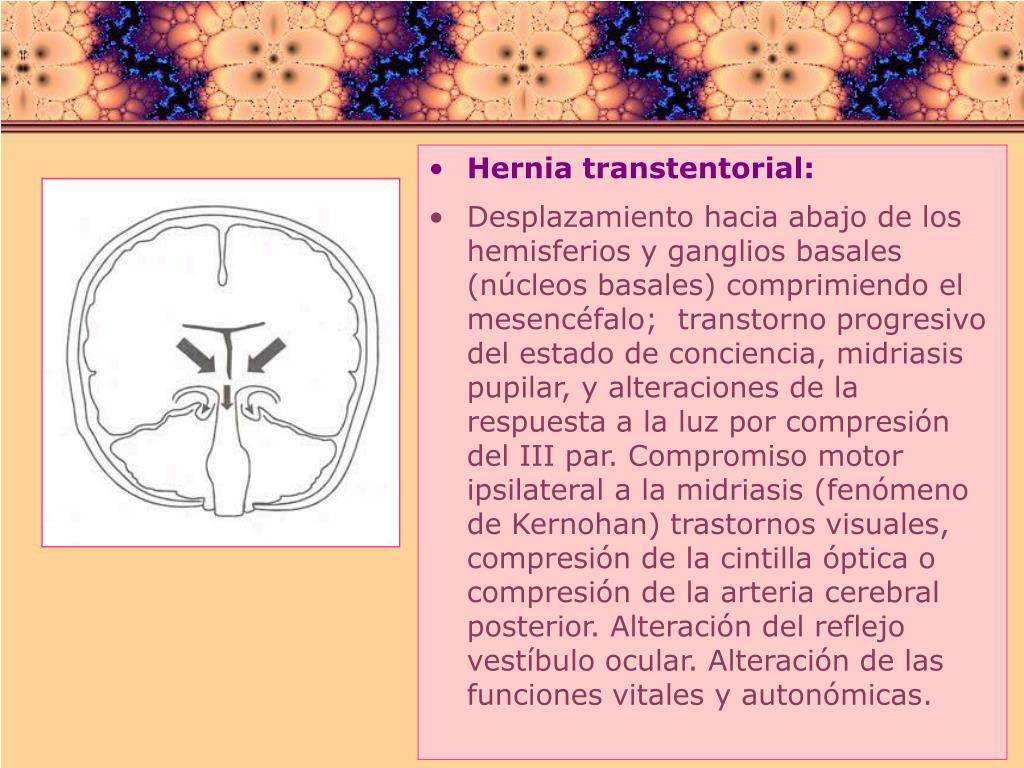 Hernia transtentorial: