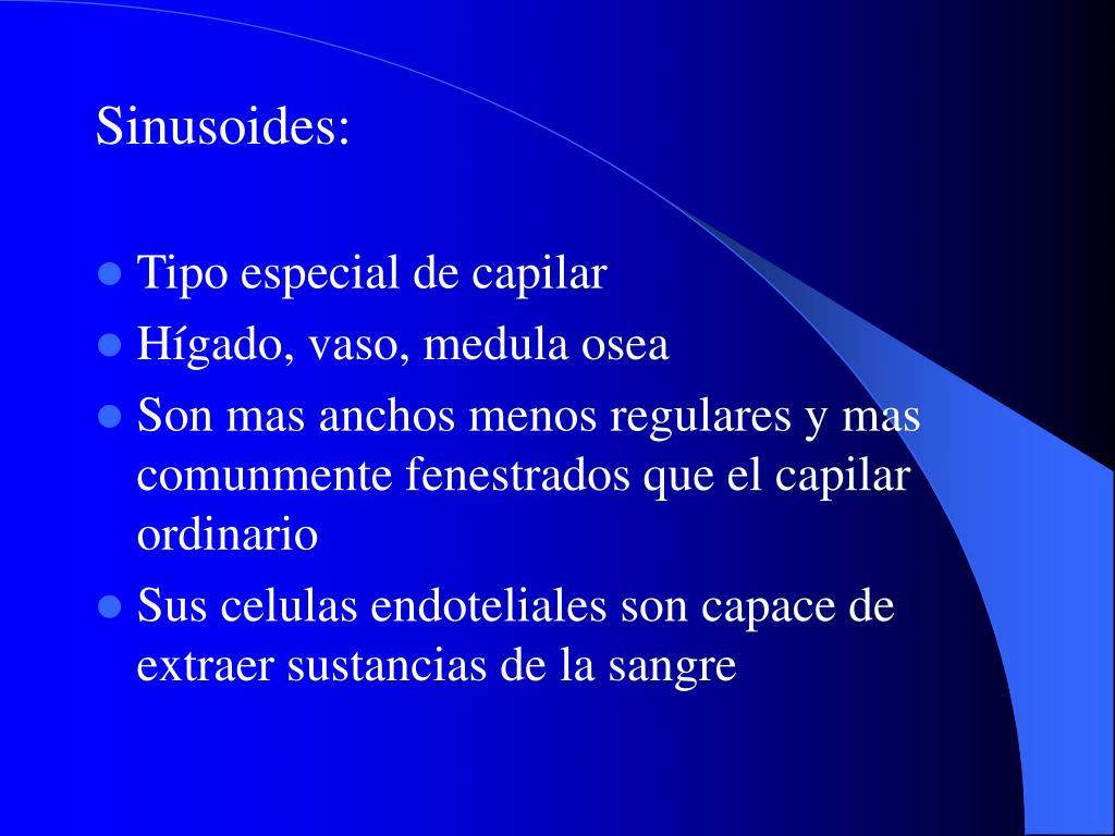 Sinusoides: