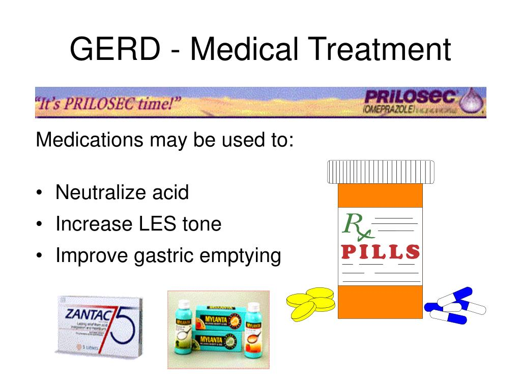 GERD - Medical Treatment