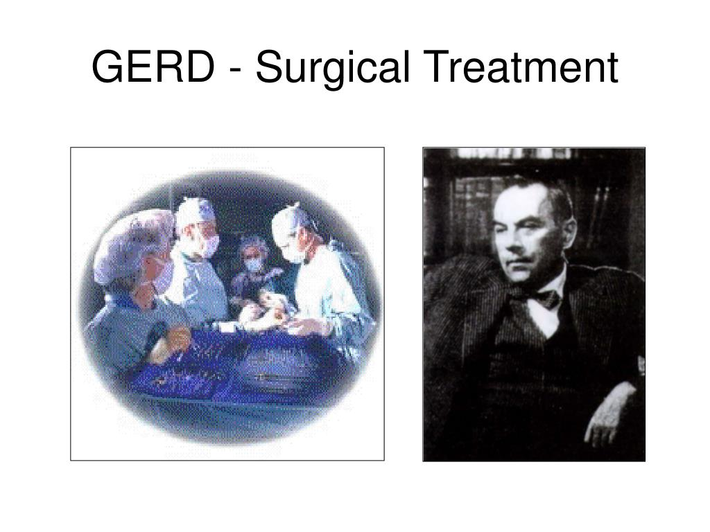 GERD - Surgical Treatment