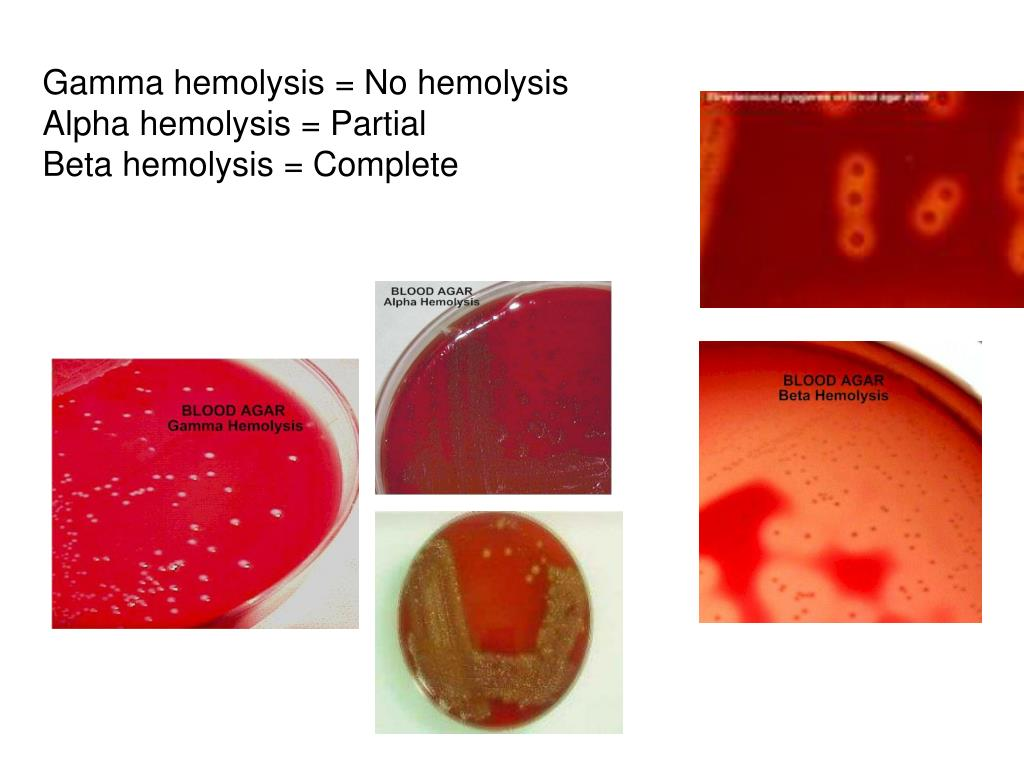 Gamma hemolysis = No hemolysis