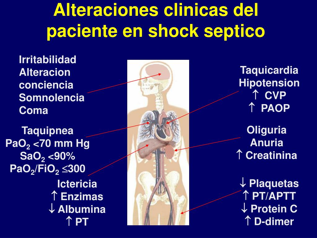 Alteraciones clinicas del paciente en shock septico