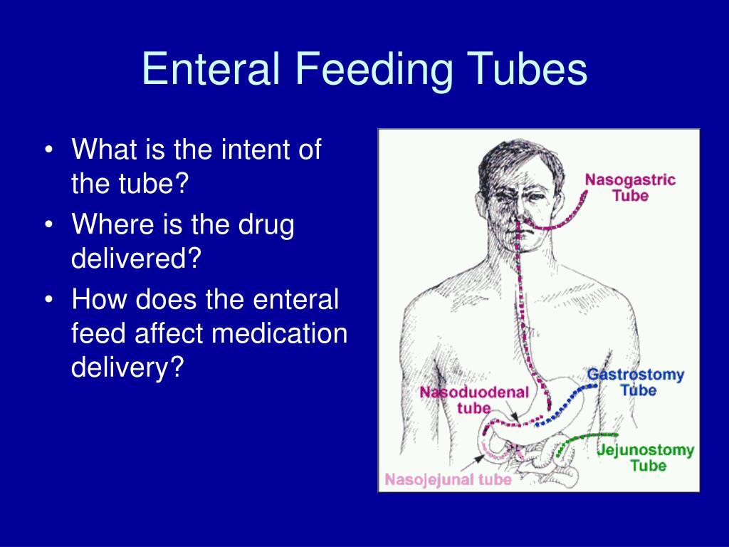 Enteral Feeding Tubes