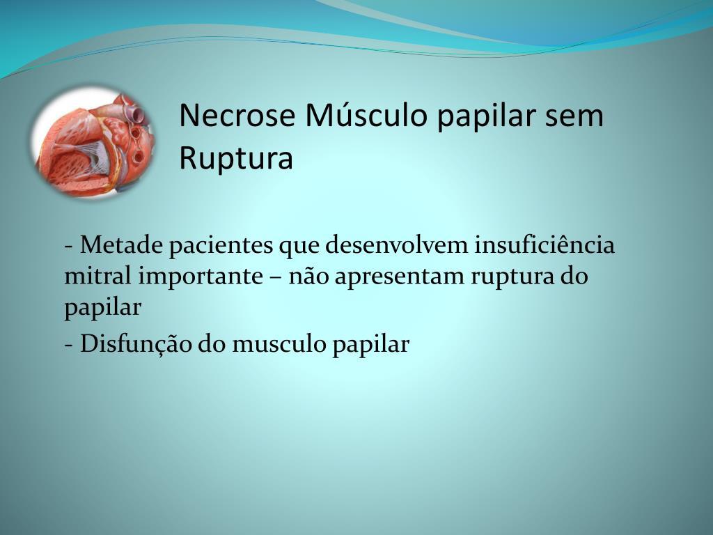 Necrose Músculo papilar sem Ruptura