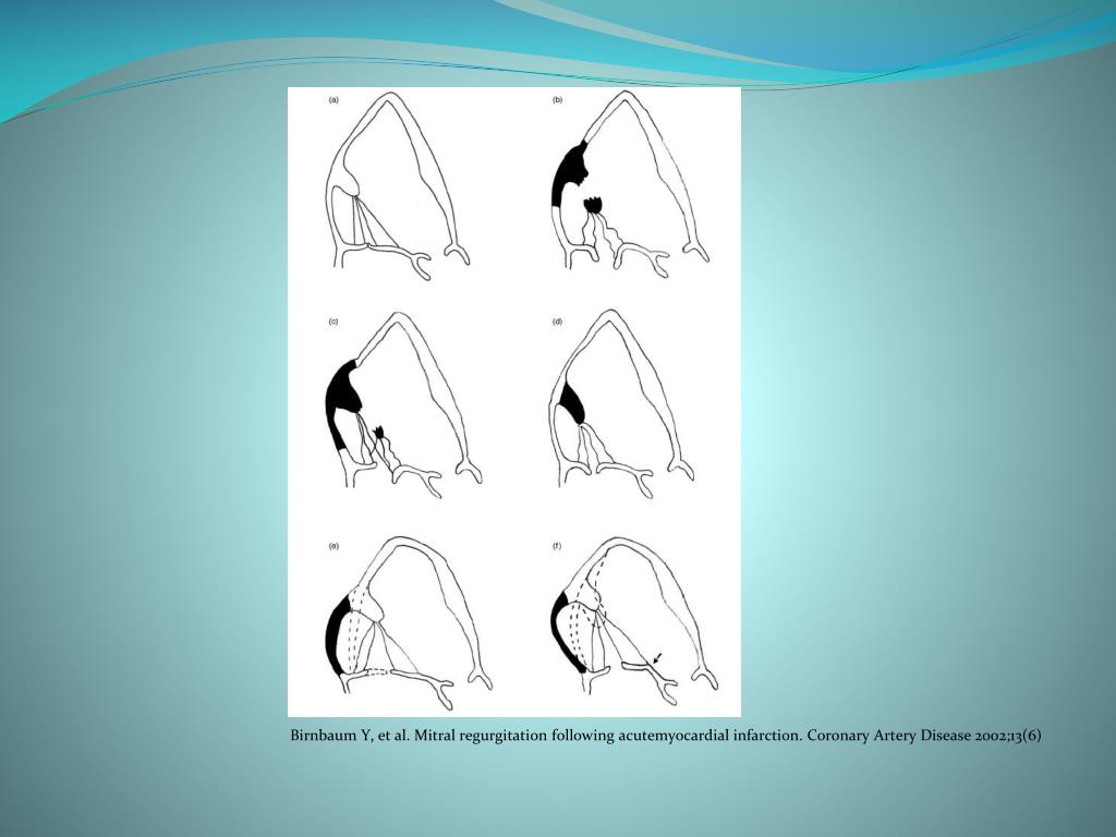 Birnbaum Y, et al. Mitral regurgitation following acutemyocardial infarction. Coronary Artery Disease 2002;13(6)