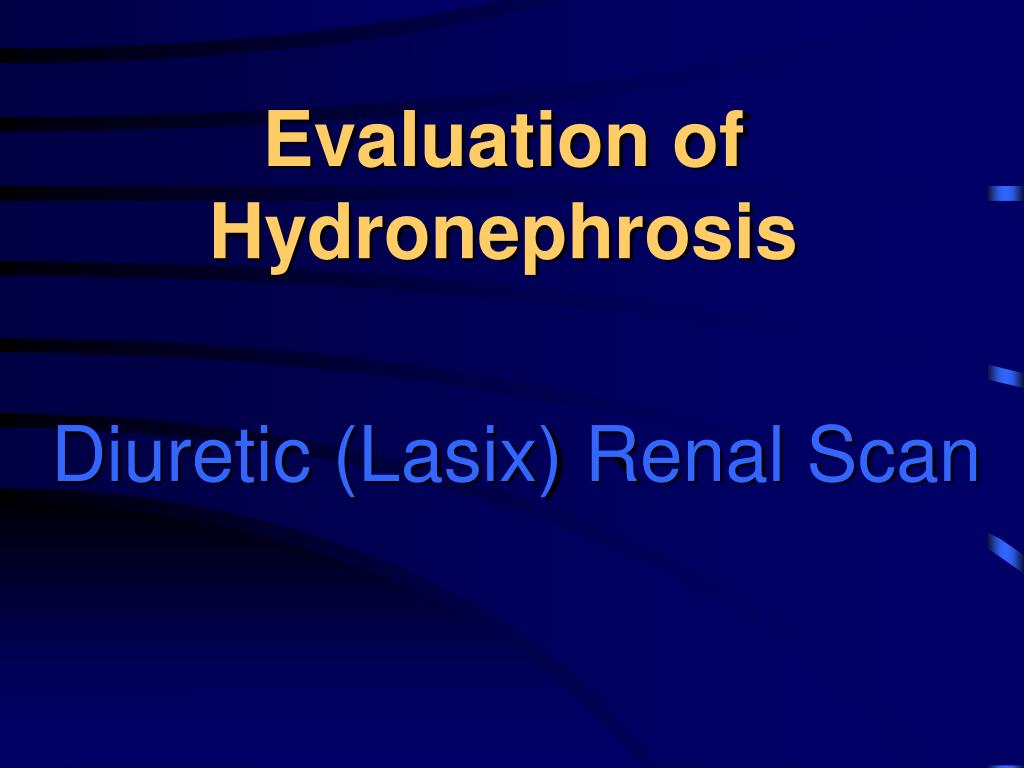 Evaluation of Hydronephrosis