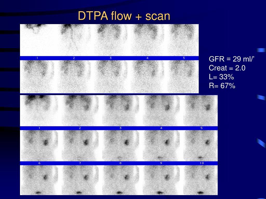 DTPA flow + scan