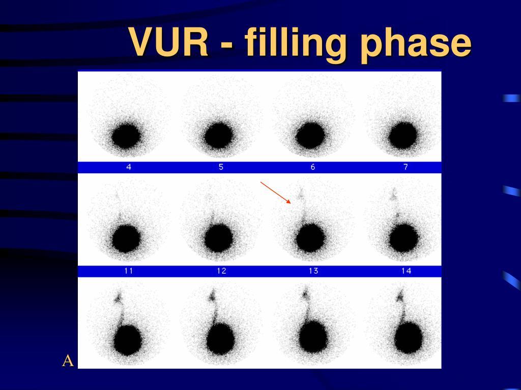 VUR - filling phase