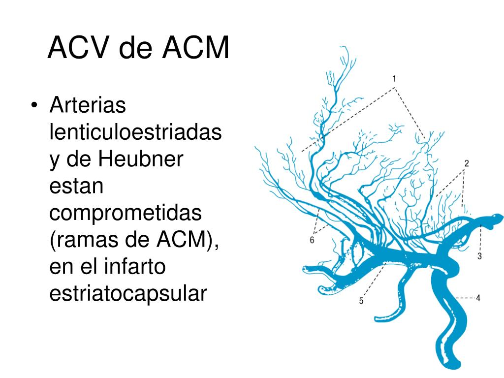 ACV de ACM