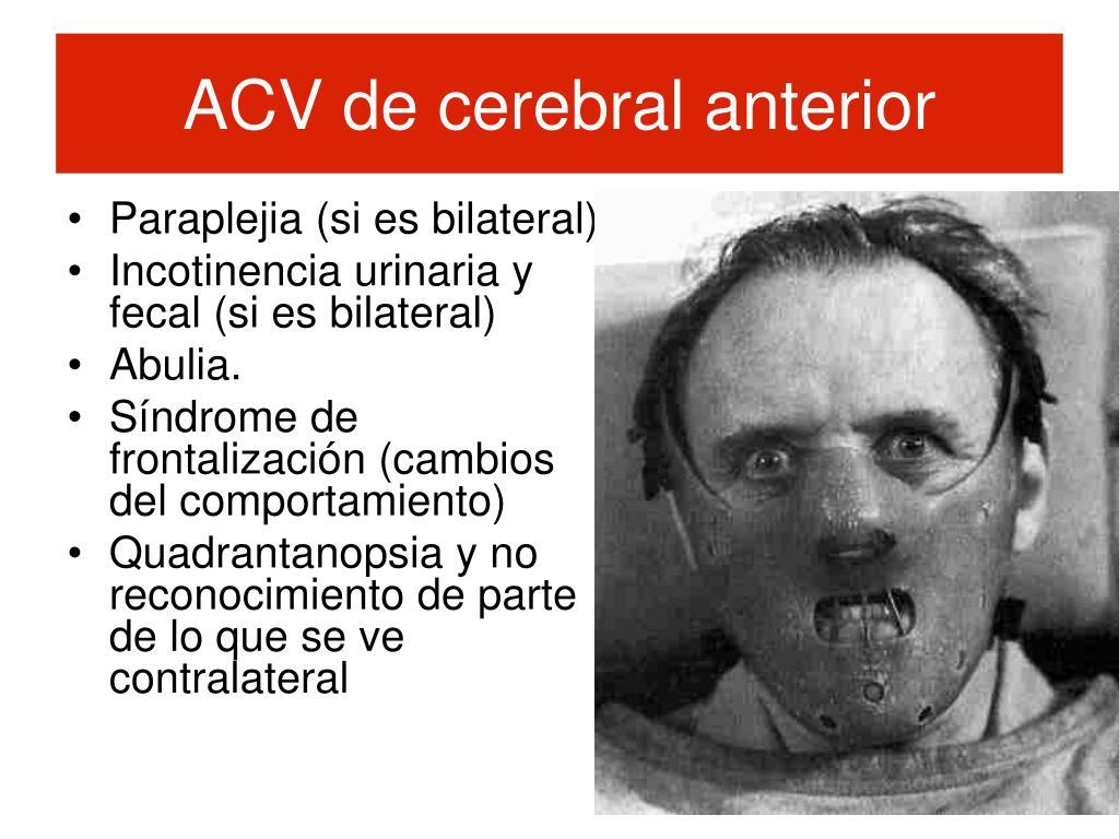 ACV de cerebral anterior