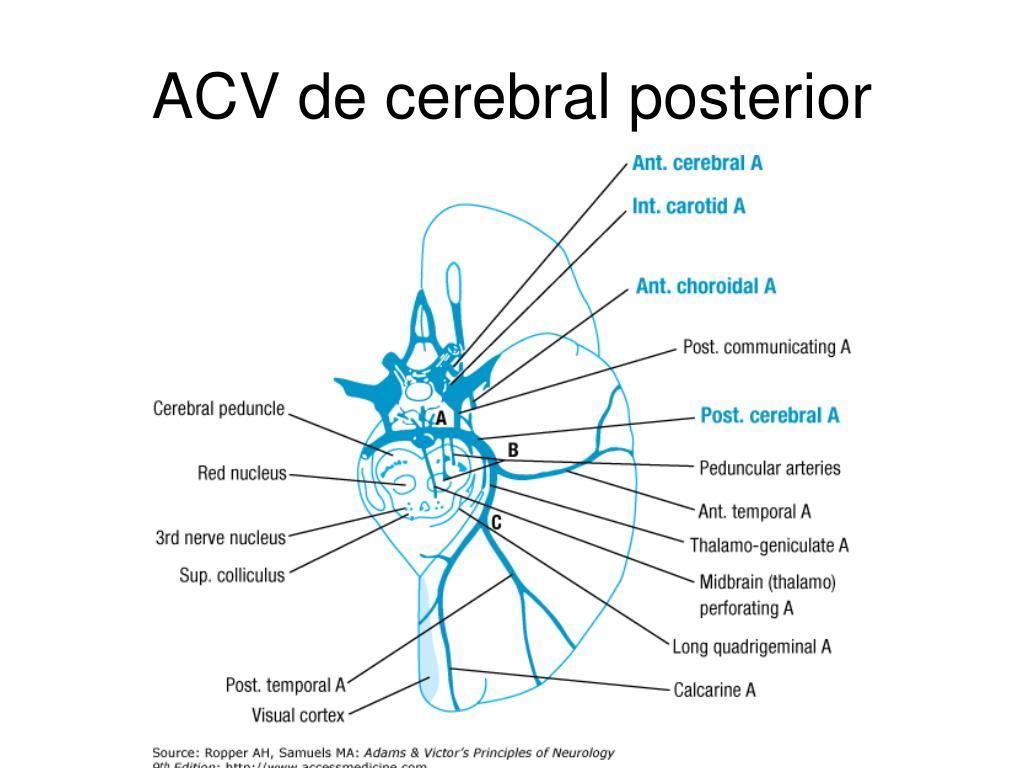 ACV de cerebral posterior