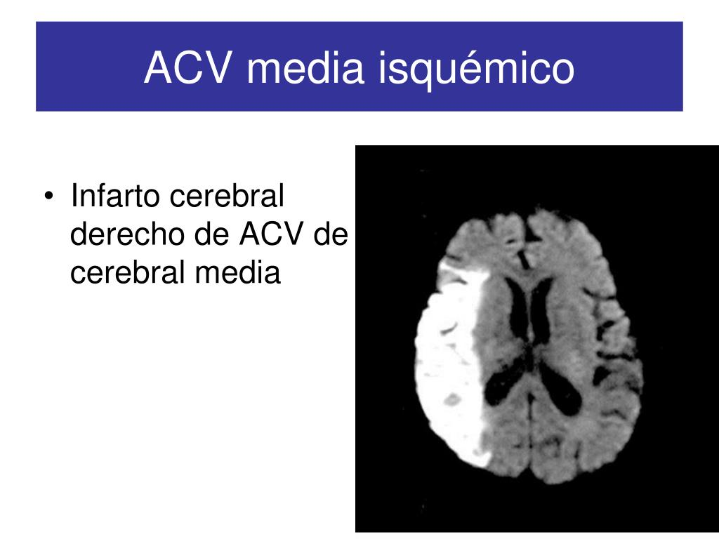 ACV media isquémico