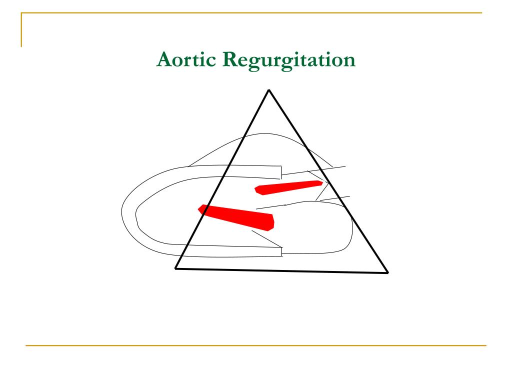 PPT - Echocardiography PowerPoint Presentation - ID:224047  Aortic