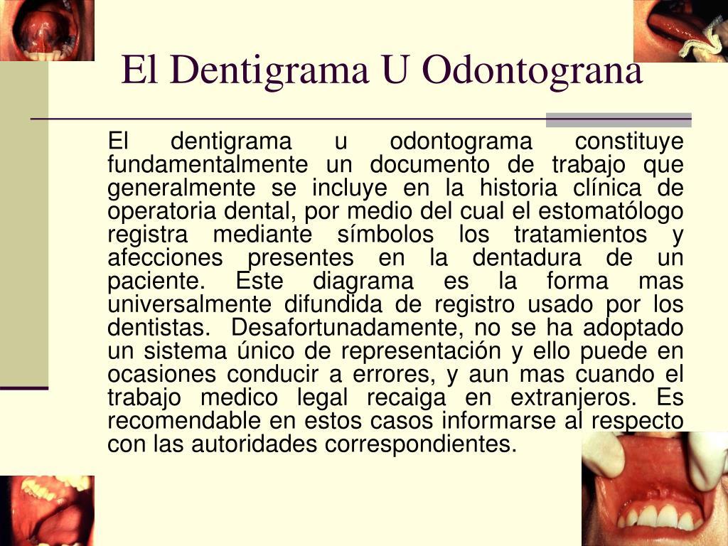 El Dentigrama U Odontograna