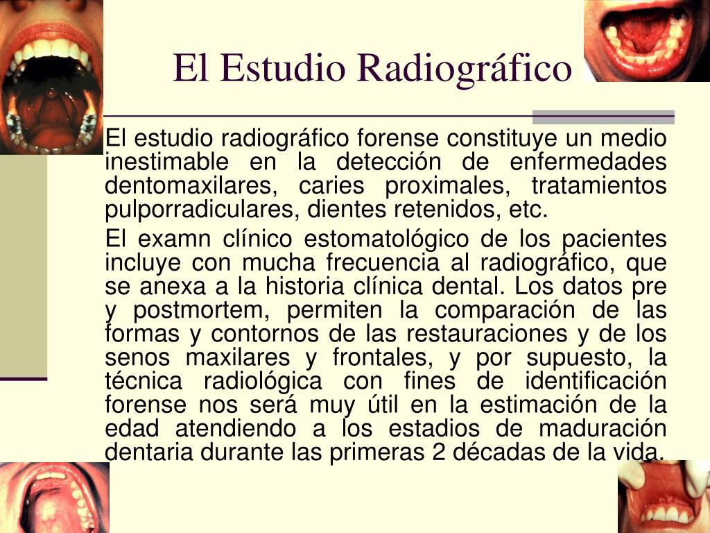El Estudio Radiográfico