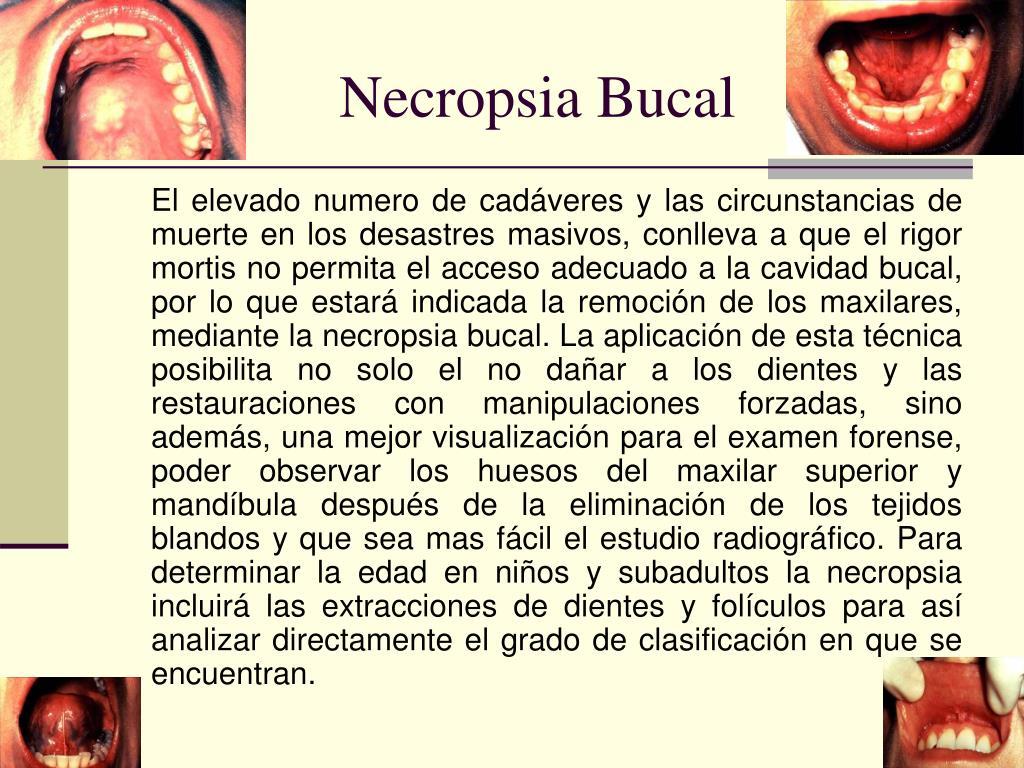 Necropsia Bucal