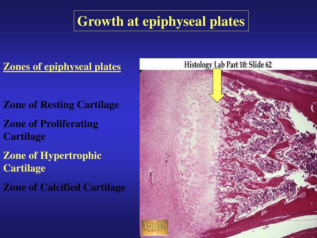 Growth at epiphyseal plates