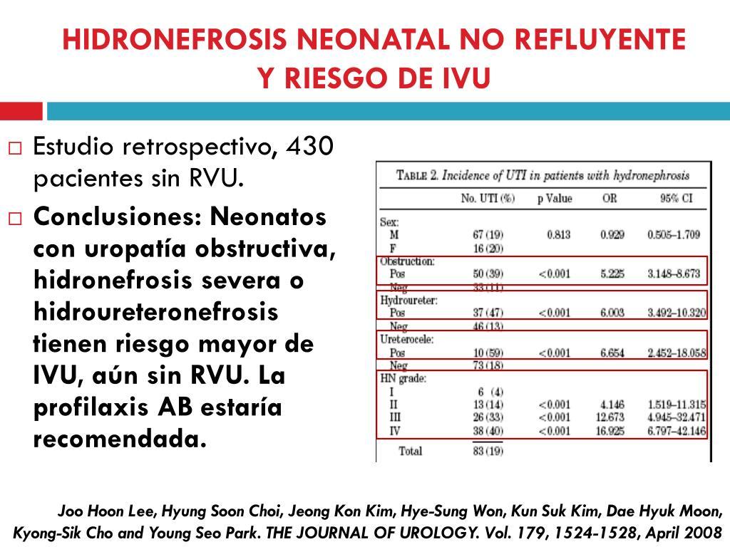 HIDRONEFROSIS NEONATAL NO REFLUYENTE Y