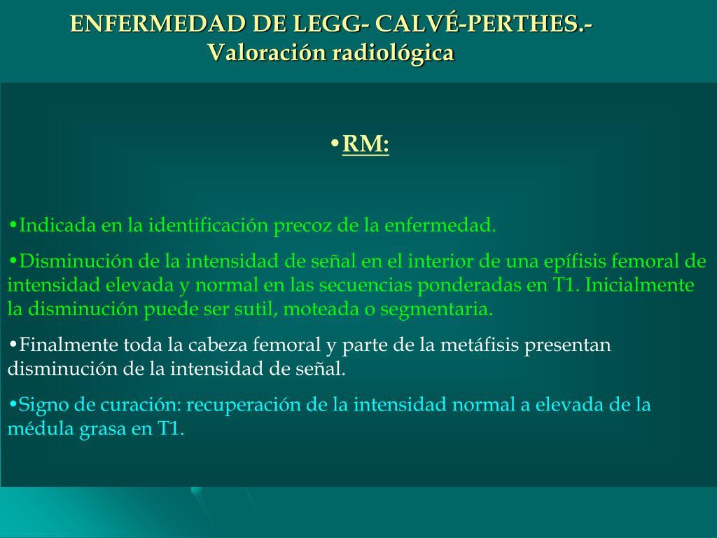ENFERMEDAD DE LEGG- CALVÉ-PERTHES.-
