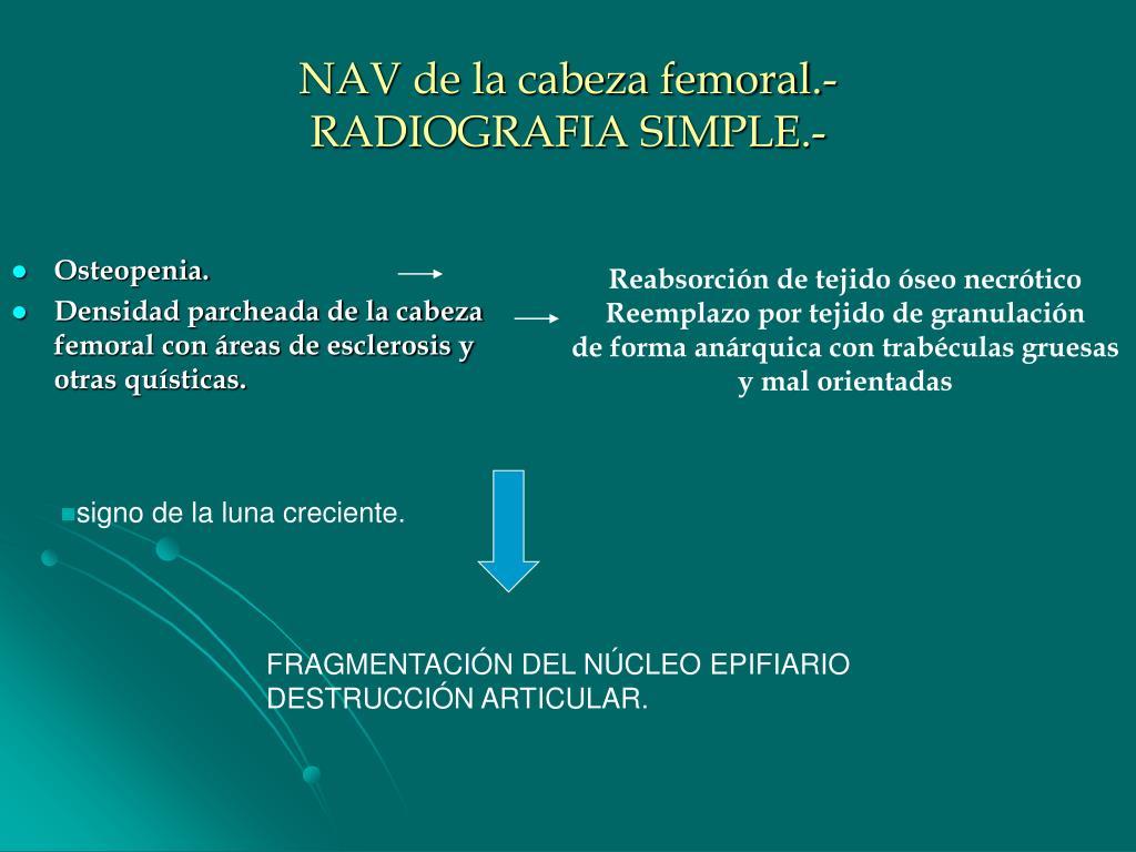 NAV de la cabeza femoral.-