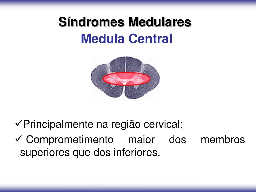 Síndromes Medulares