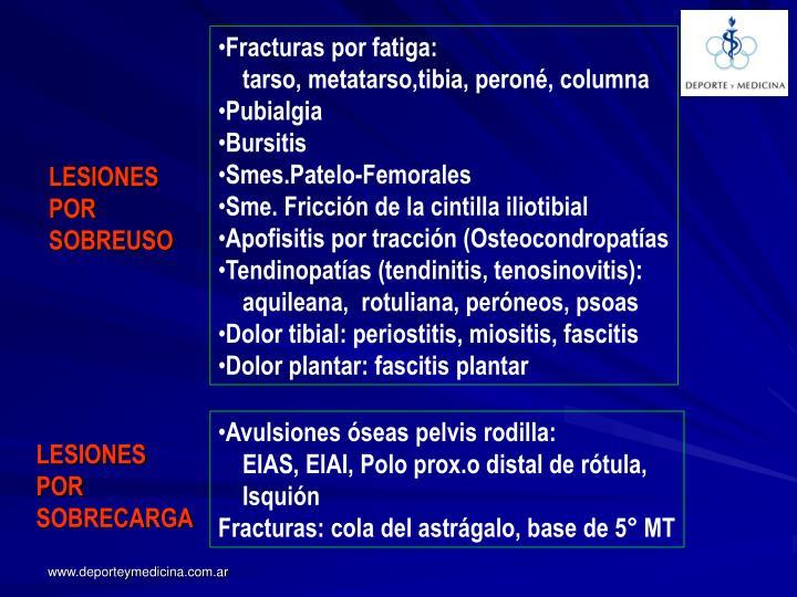 Fracturas por fatiga: