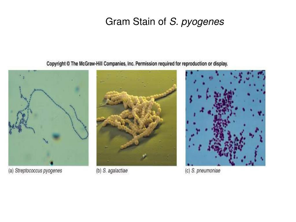 Gram Stain of