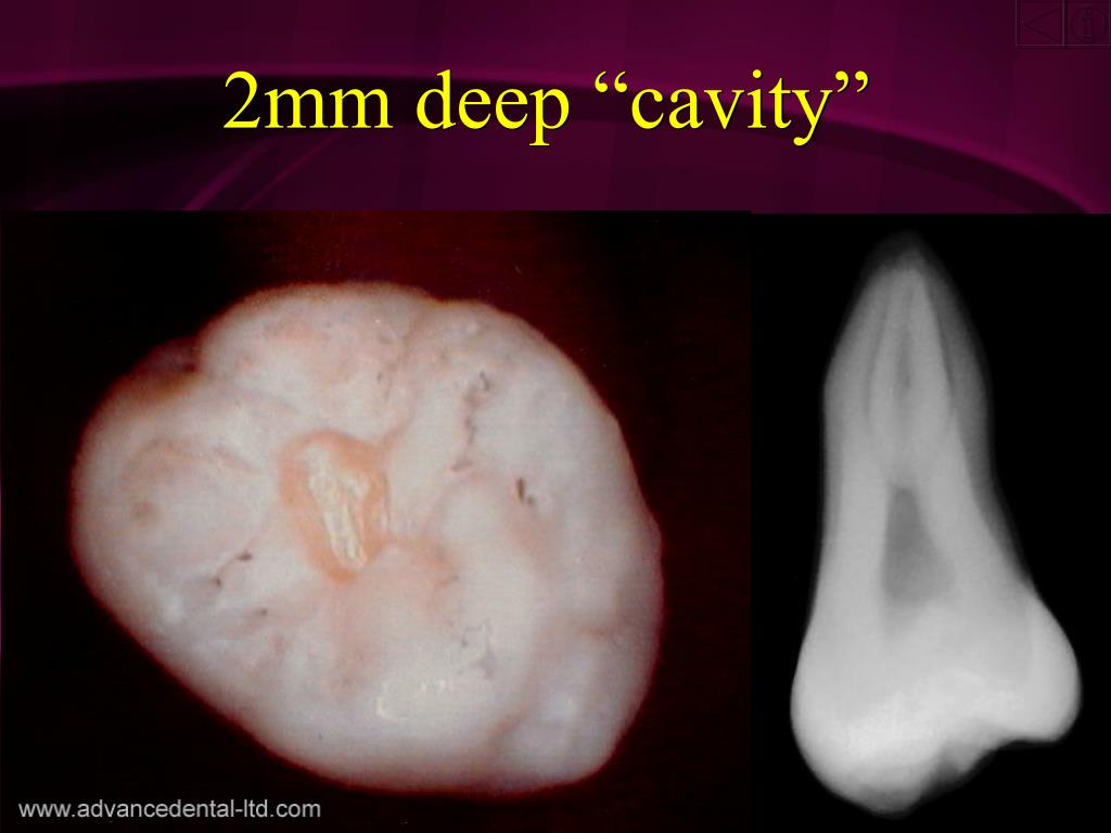 "2mm deep ""cavity"""