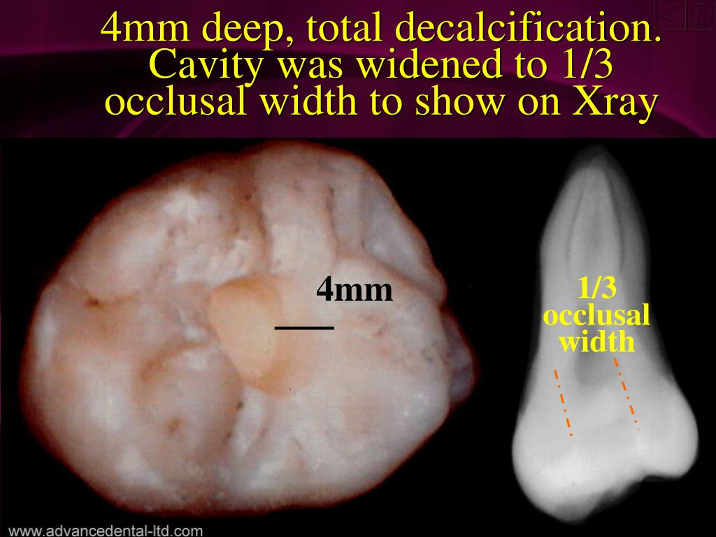 4mm deep, total decalcification.