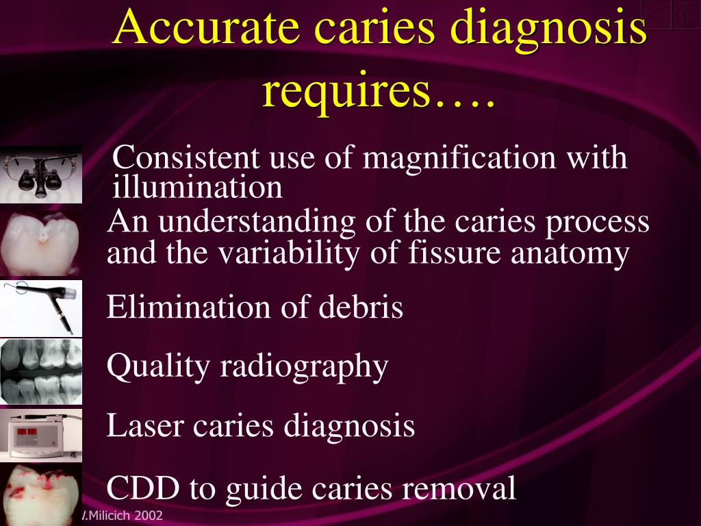 Accurate caries diagnosis requires….