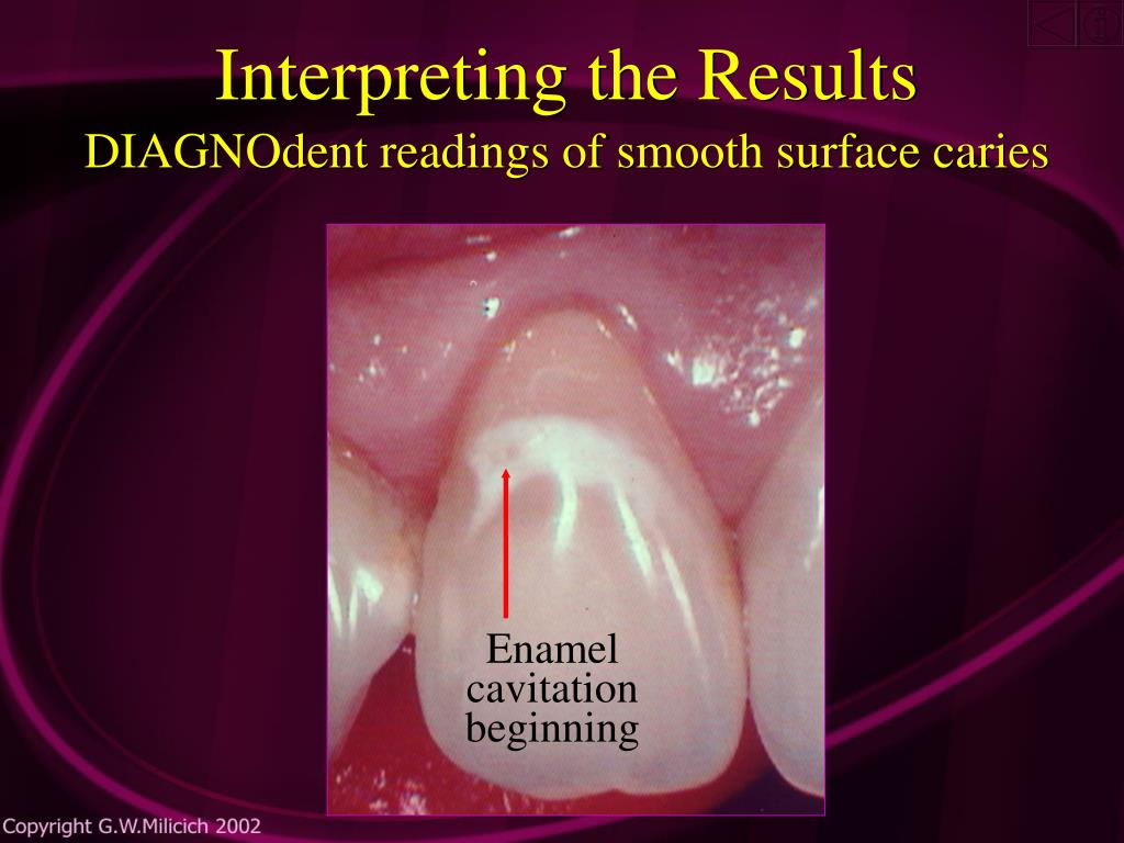 Enamel cavitation beginning
