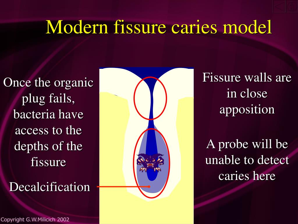 Modern fissure caries model