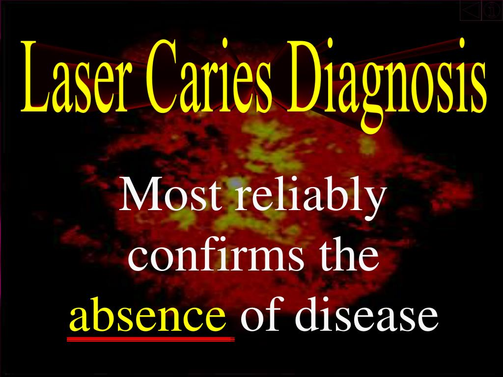 Laser Caries Diagnosis