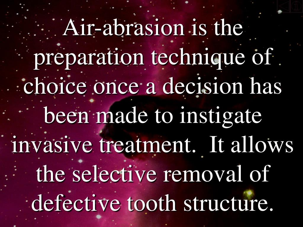 Air-abrasion is the preparation technique of choice once a decision has been made to instigate invasive treatment.  It allows the selective removal of defective tooth structure.