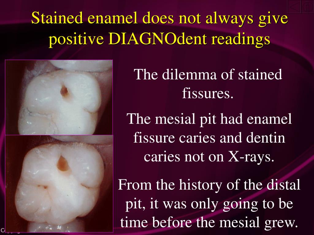 Stained enamel does not always give positive DIAGNOdent readings