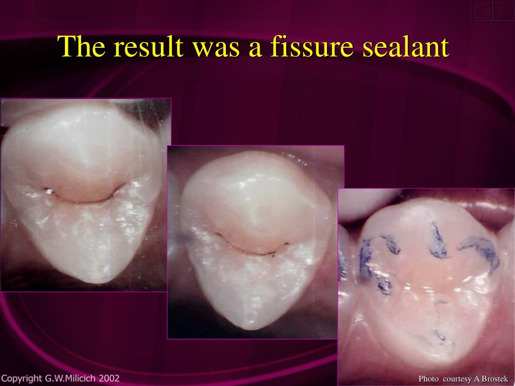 The result was a fissure sealant